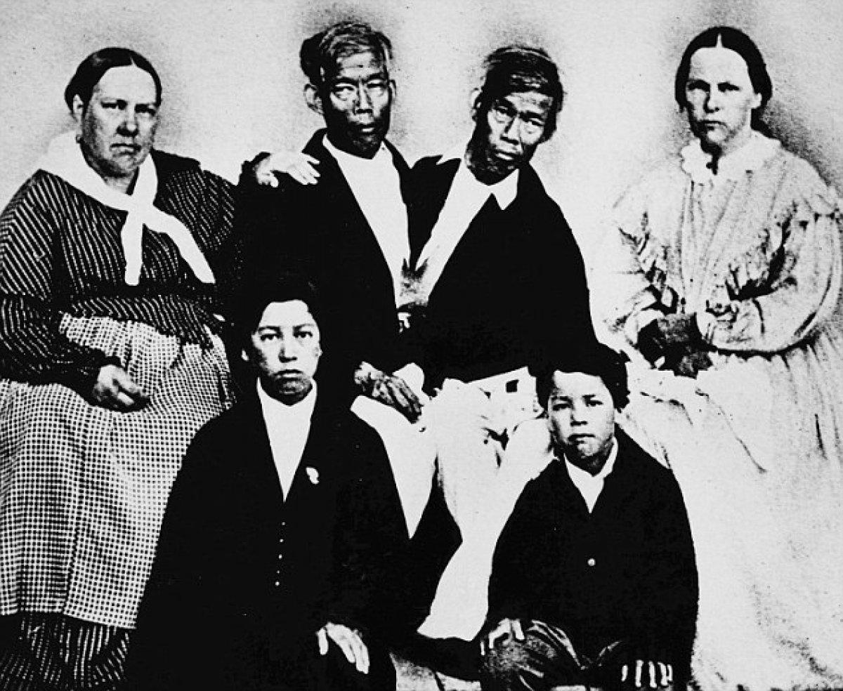 Tek bedende iki arzu: Siyam İkizleri Chang ve Eng Bunker'in hikayesi #5