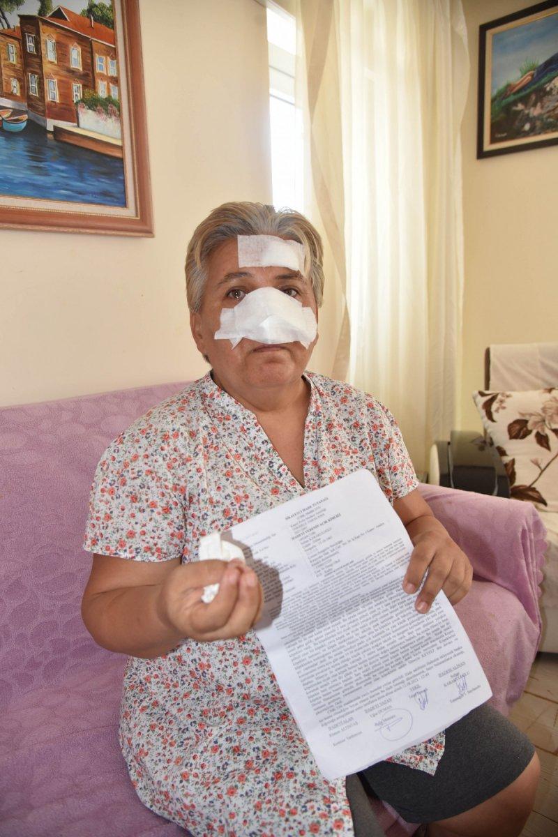 Antalya'da bir kadın, 2 pitbull köpeğinin saldırısına uğradı #5