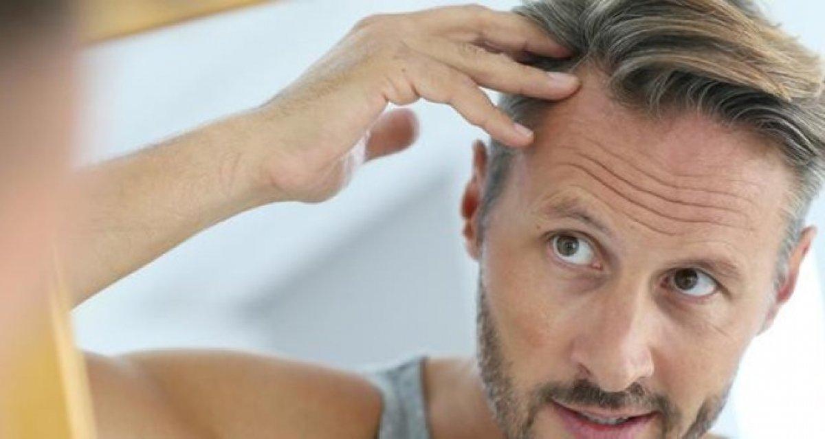 Saç ekimiyle ilgili doğru bilinen 6 yanlış #1