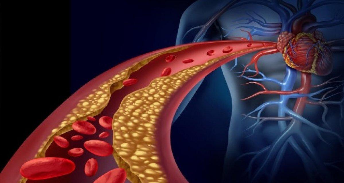 K vitamini, damar tıkanıklığını önlüyor #1