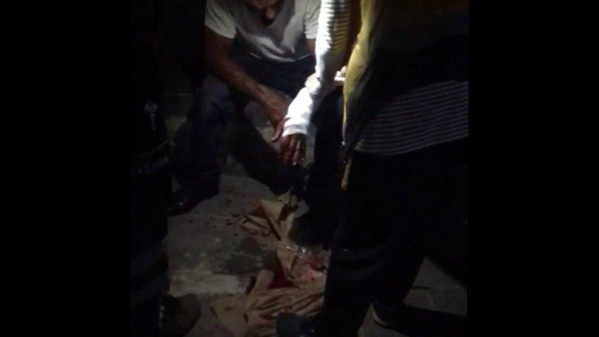 Kayseri de uyardığı kadın tarafından bıçaklandı #4