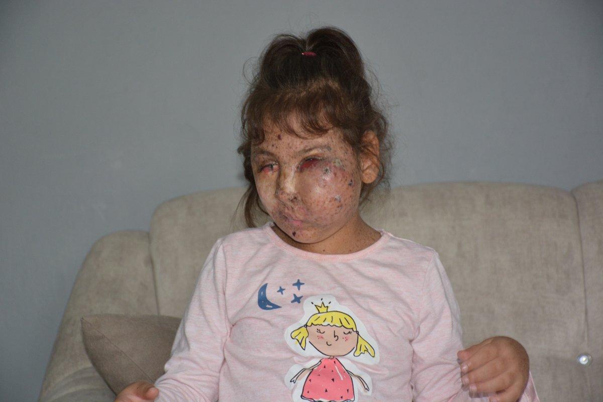 Karabük te Mikrosefali hastası Sahra, yardım bekliyor #2
