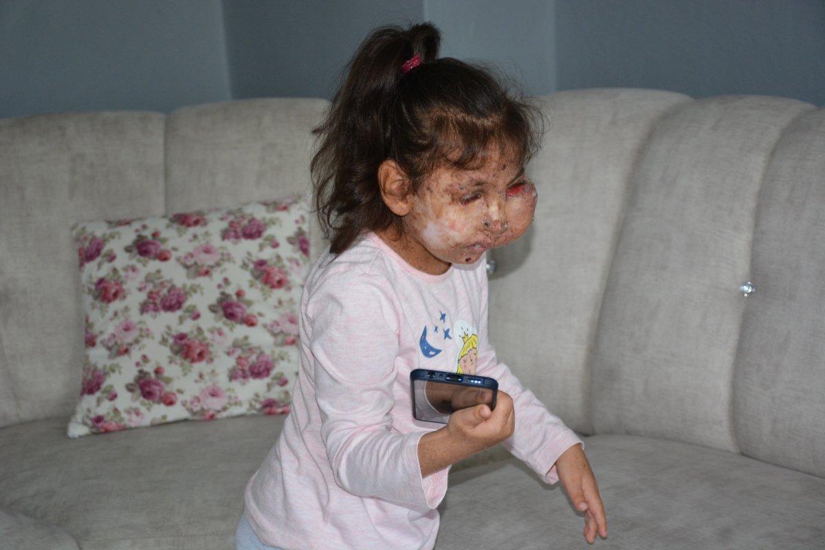 Karabük te Mikrosefali hastası Sahra, yardım bekliyor #6