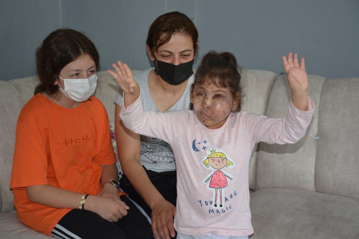 Karabük te Mikrosefali hastası Sahra, yardım bekliyor #1