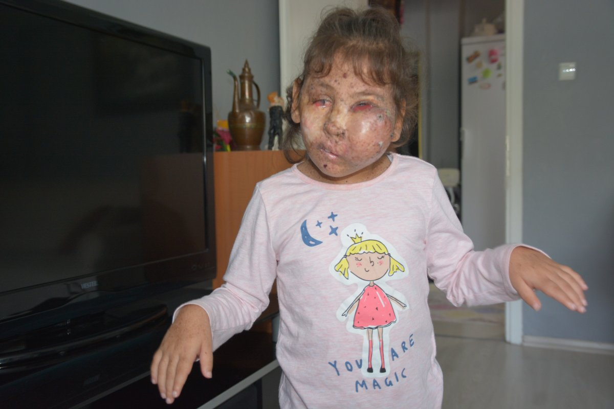 Karabük te Mikrosefali hastası Sahra, yardım bekliyor #3