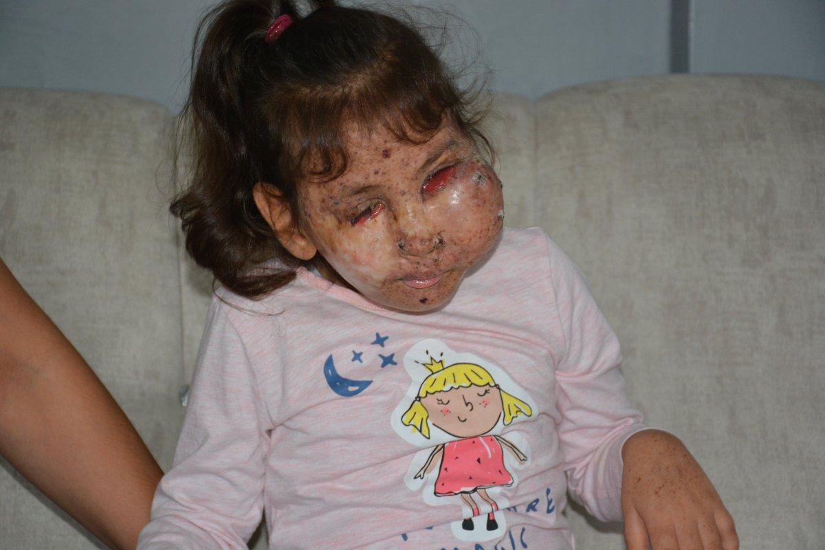 Karabük te Mikrosefali hastası Sahra, yardım bekliyor #4