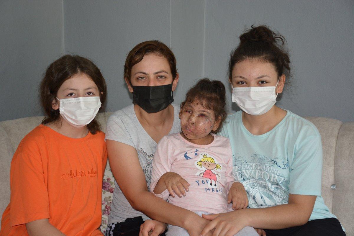 Karabük te Mikrosefali hastası Sahra, yardım bekliyor #5