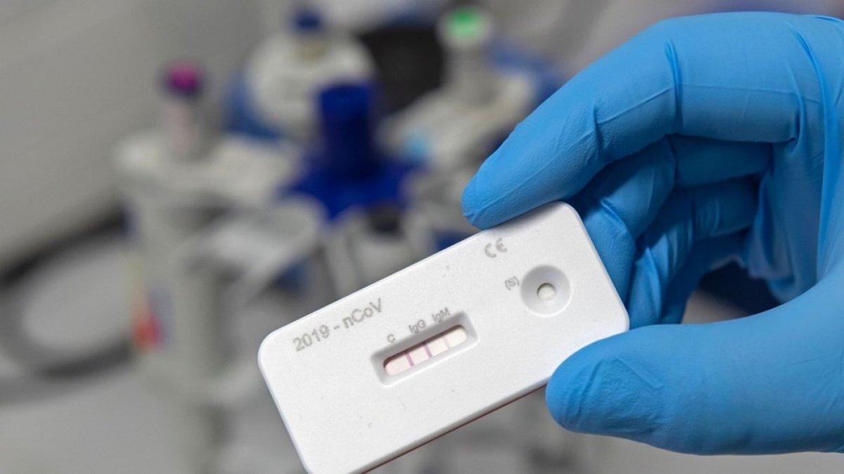 Antikor testi: IgG ve IgM değerleri ne anlama gelir #2