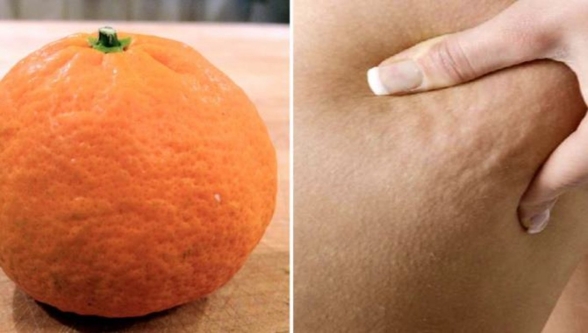 Portakal görünümüne elveda: Selülit azaltmanın etkili 5 yolu #1