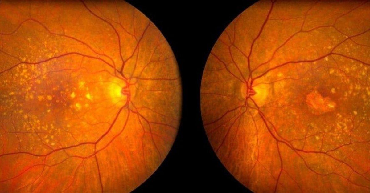 Kadir İnanır ameliyat olmuştu! Sarı nokta hastalığı nedir, belirtileri nelerdir? #2