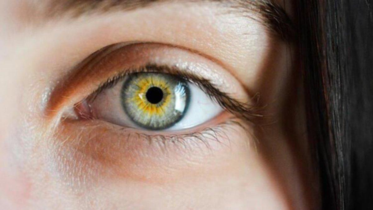 Kadir İnanır ameliyat olmuştu! Sarı nokta hastalığı nedir, belirtileri nelerdir? #1