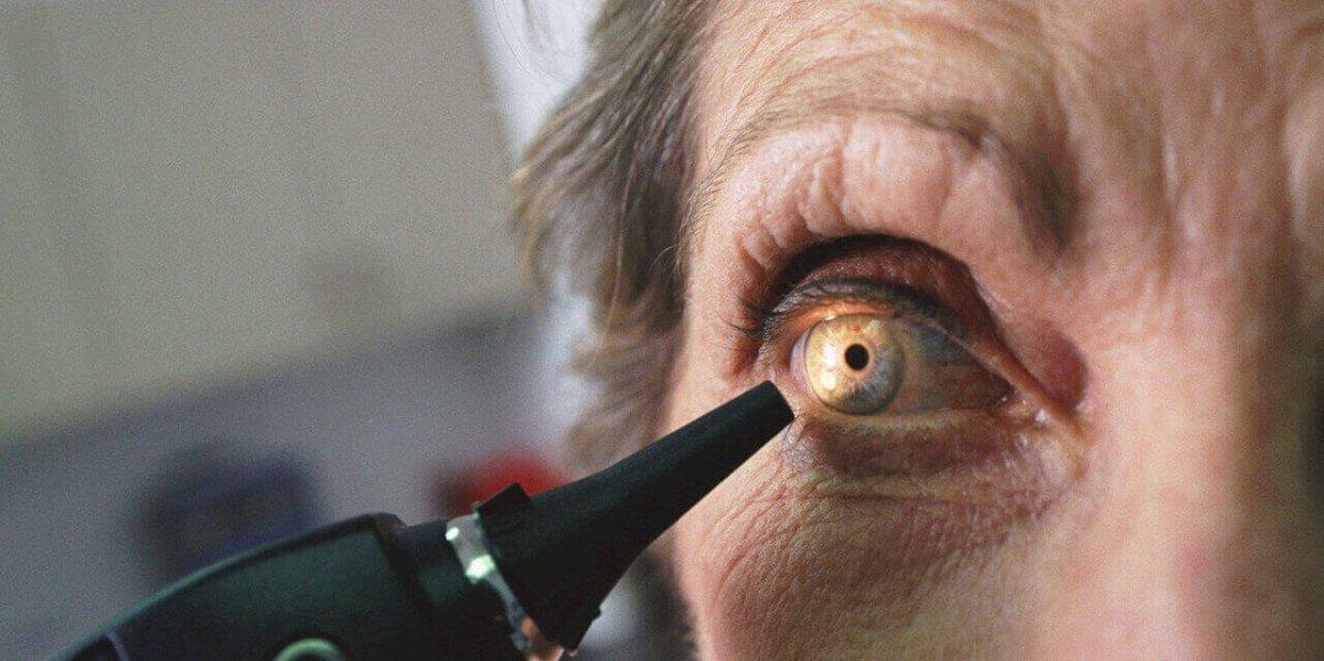 Kadir İnanır ameliyat olmuştu! Sarı nokta hastalığı nedir, belirtileri nelerdir? #3