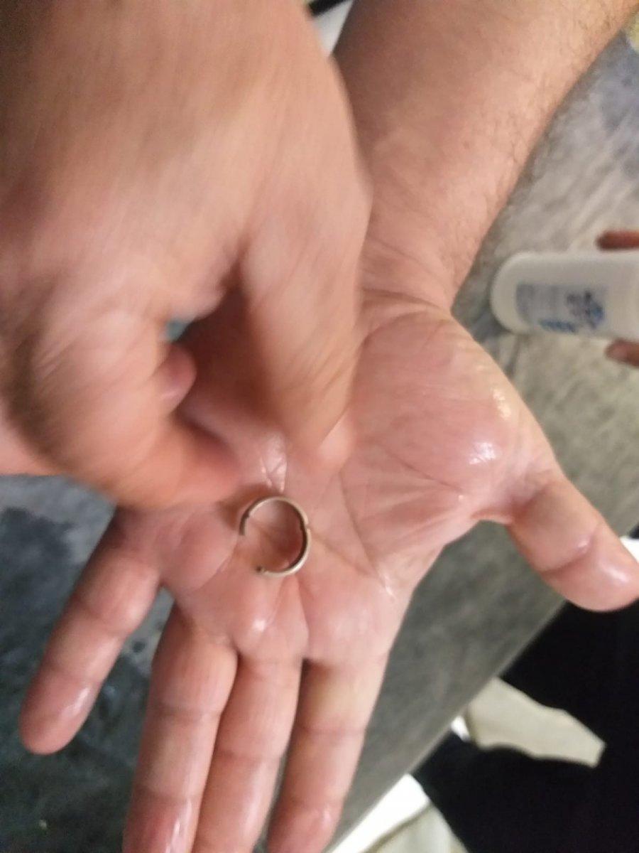 Siirt'te, genç kızın parmağında sıkışan yüzük 1 saatte çıkarıldı  #2
