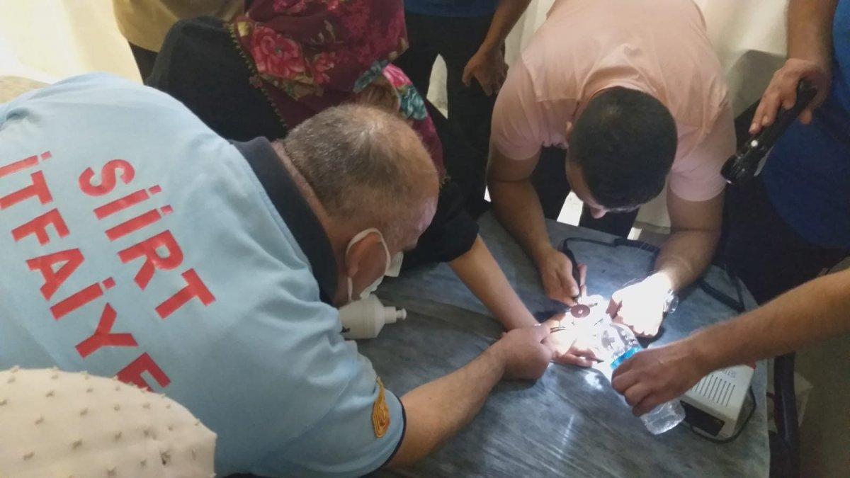 Siirt'te, genç kızın parmağında sıkışan yüzük 1 saatte çıkarıldı  #1