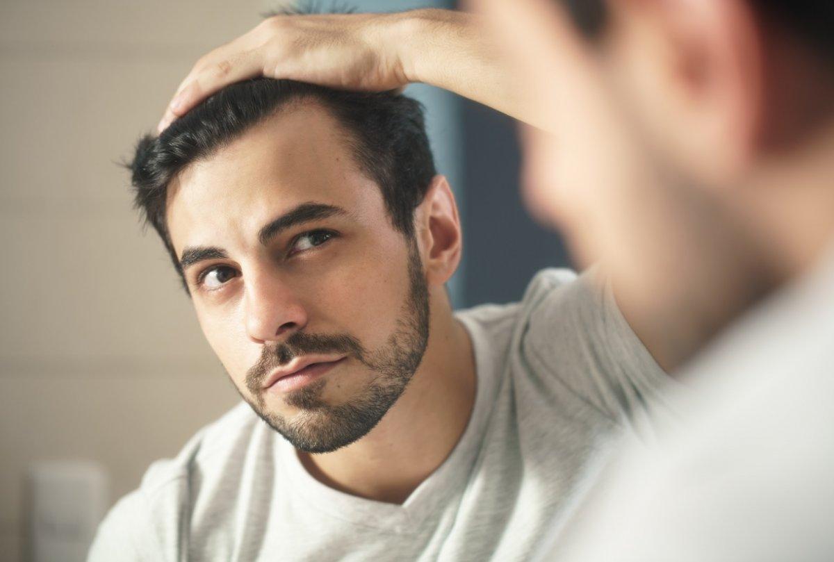 Saç ekimi yaptırmanın riskleri #12