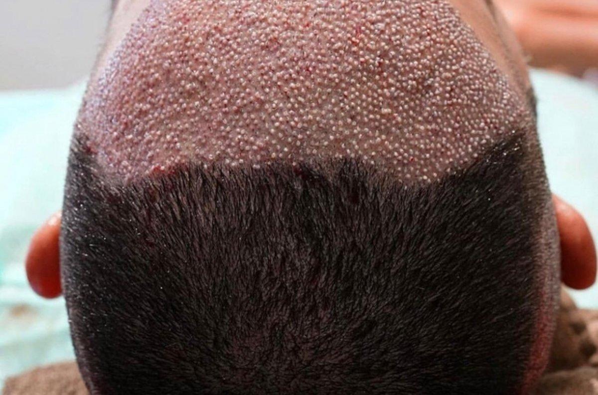 Saç ekimi yaptırmanın riskleri #9