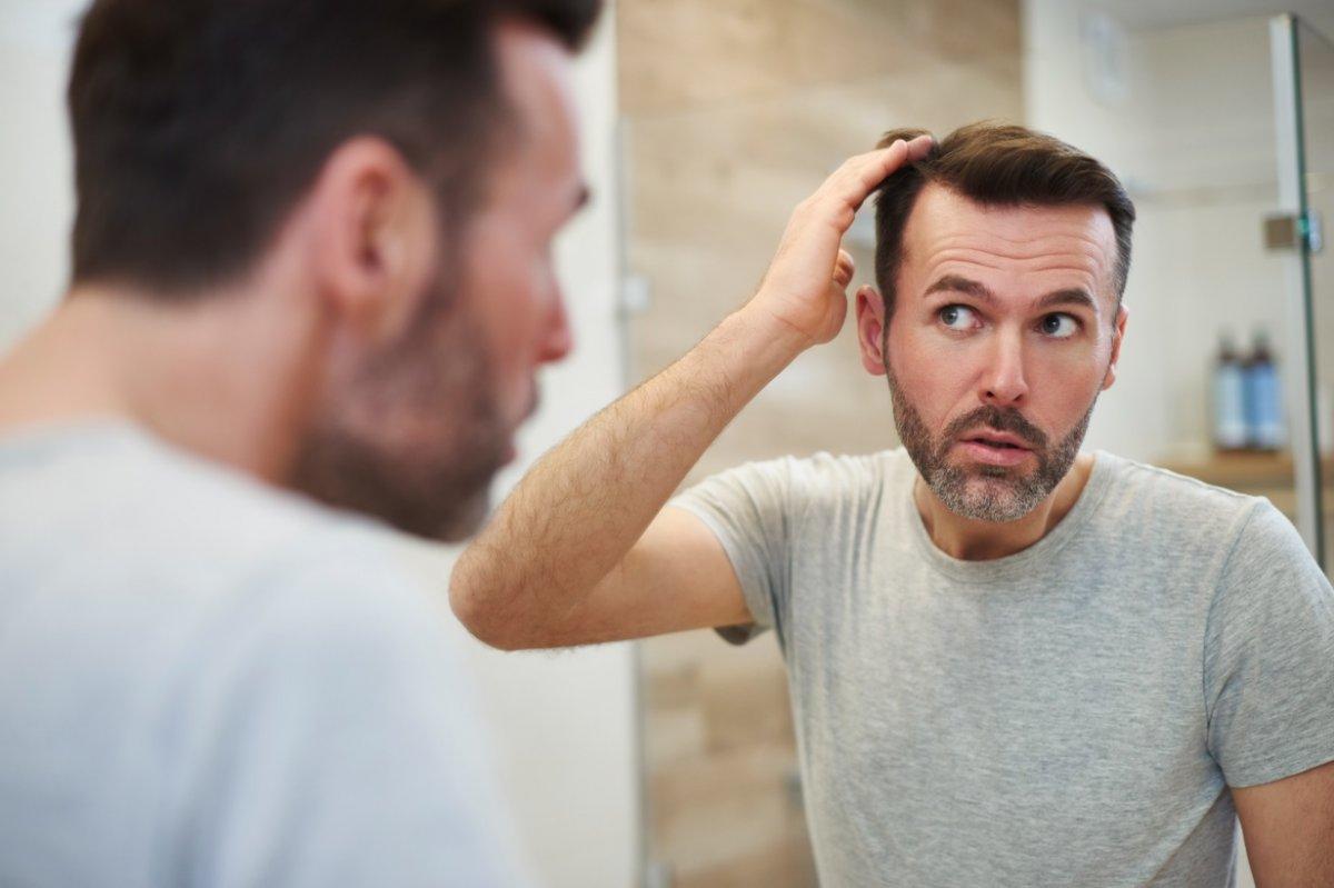 Saç ekimi yaptırmanın riskleri #6