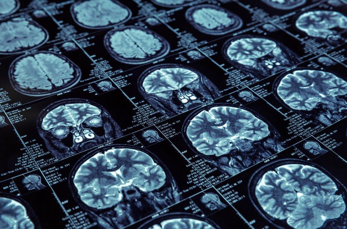 Beyin kanaması belirtileri ve önlemek için ipuçları #3