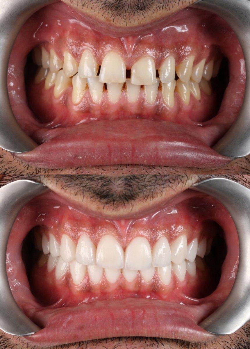 Estetik Diş Hekimliği ve Gülüş Tasarımı #2