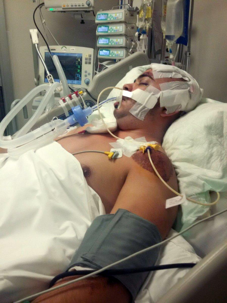 Antalya da 752 gün komada kalan Semih, hayata tutundu #1