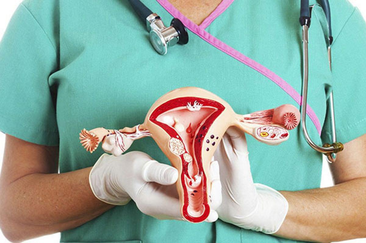 Kadınlarda Polikistik Over Sendromu ve tedavisi #1