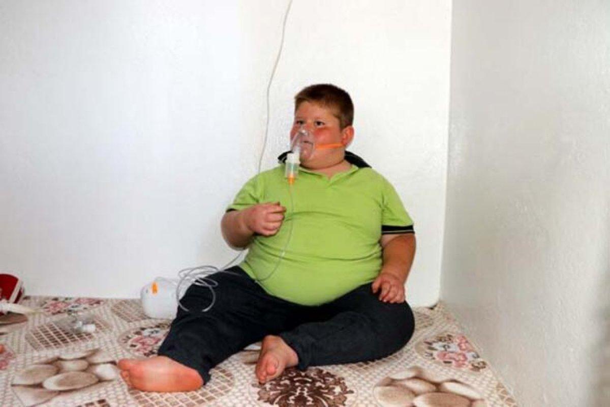 Gaziantep te Prader Willi sendromlu küçük Mustafa, yardım bekliyor #6