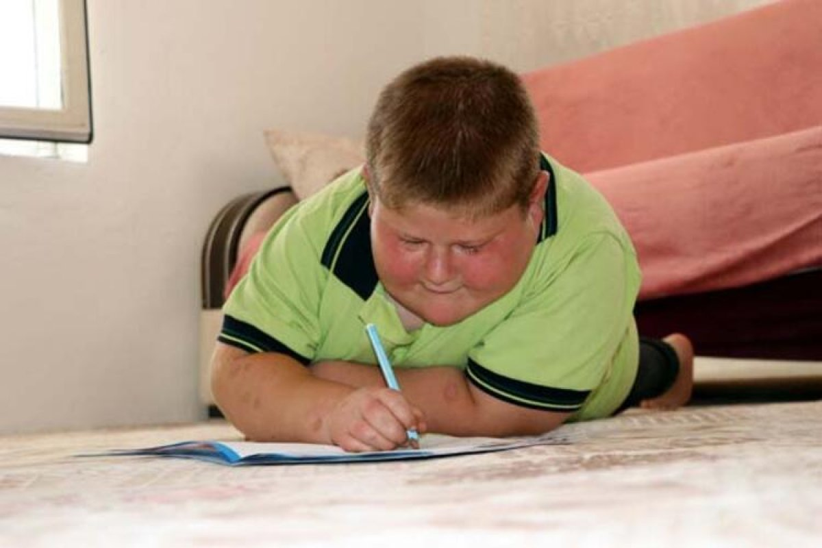 Gaziantep te Prader Willi sendromlu küçük Mustafa, yardım bekliyor #5