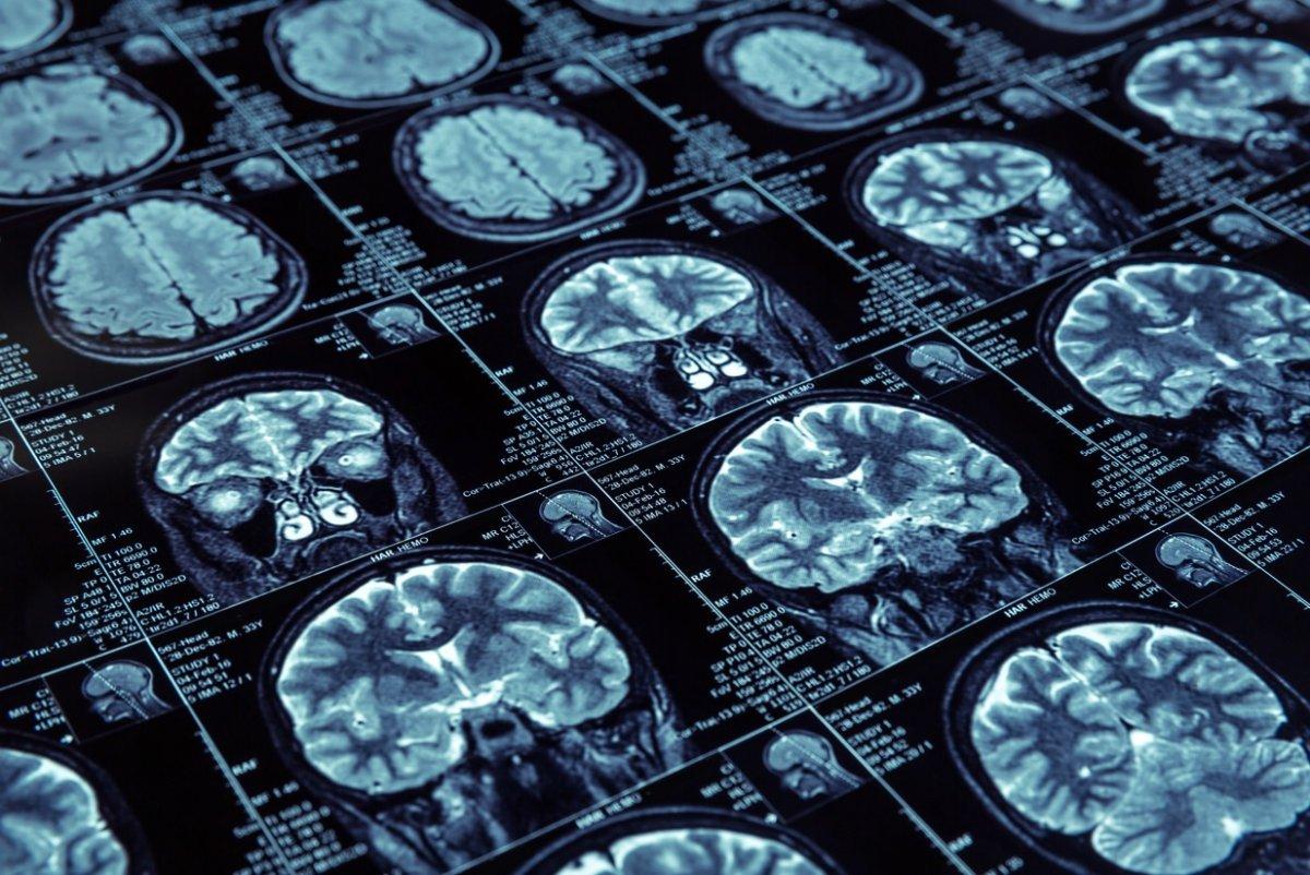 Alzheimer ı doğal yaşlanmadan ayıran 8 nokta #1