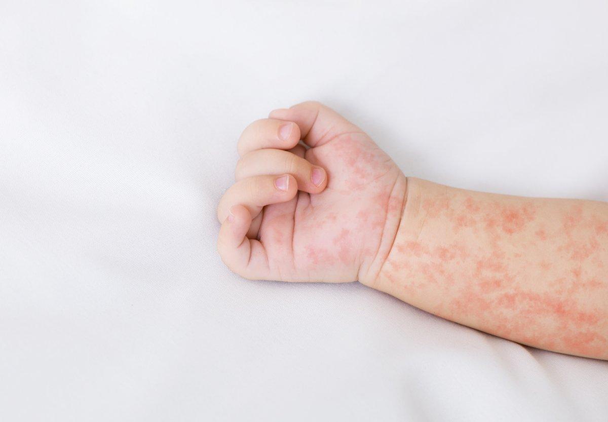Dünyanın en ölümcül 10 viral hastalığı #8