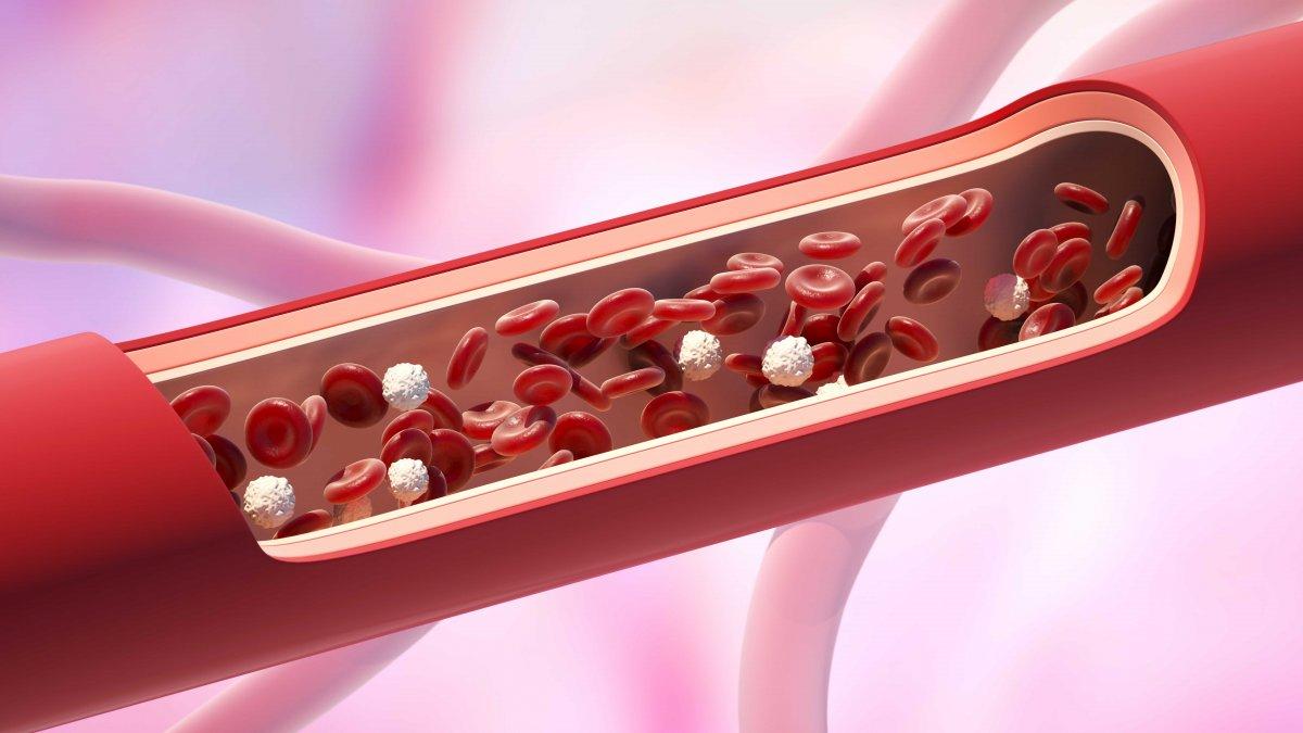 Sessiz katil: Kan pıhtısı riskini azaltmanın yolları #3