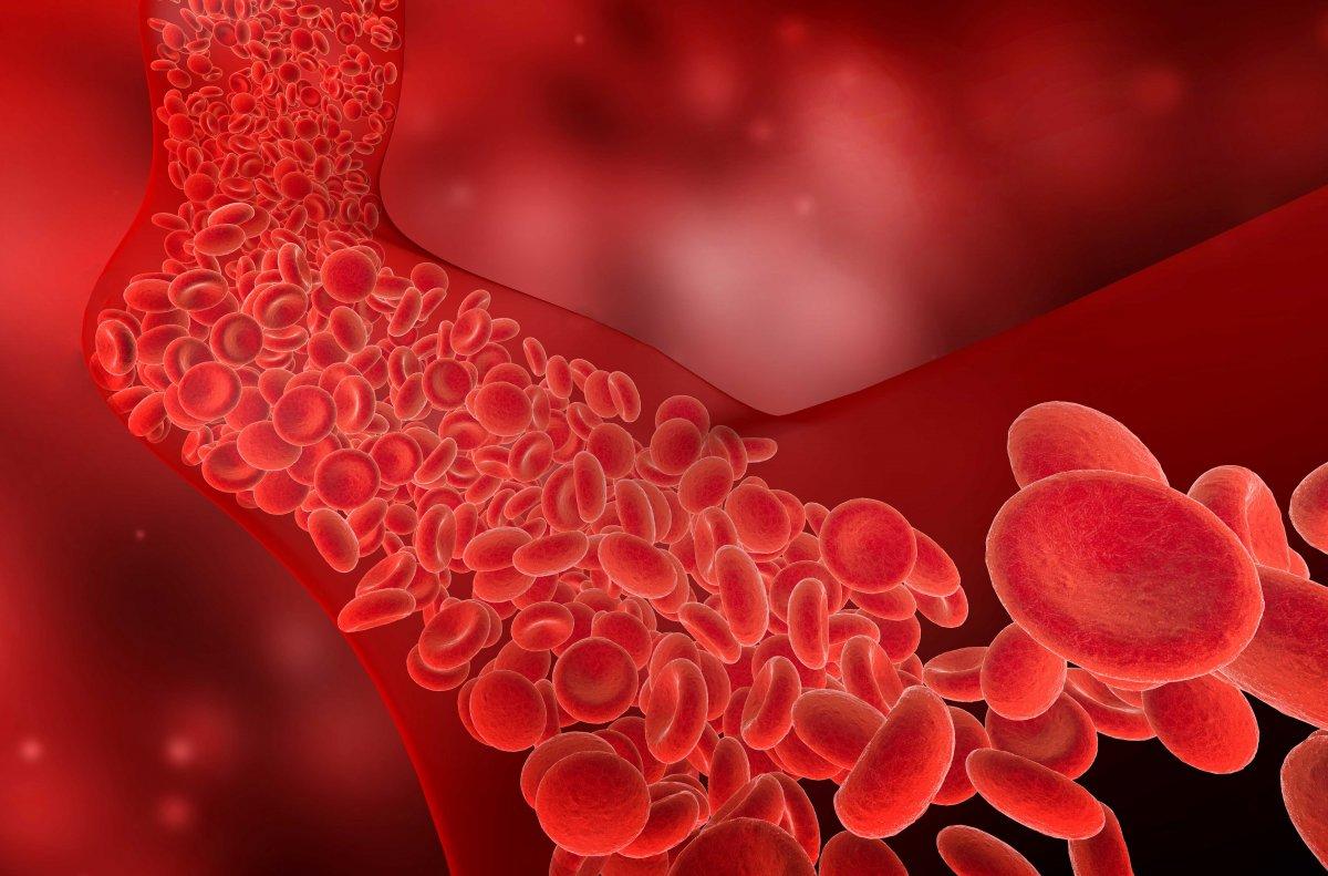 Sessiz katil: Kan pıhtısı riskini azaltmanın yolları #1