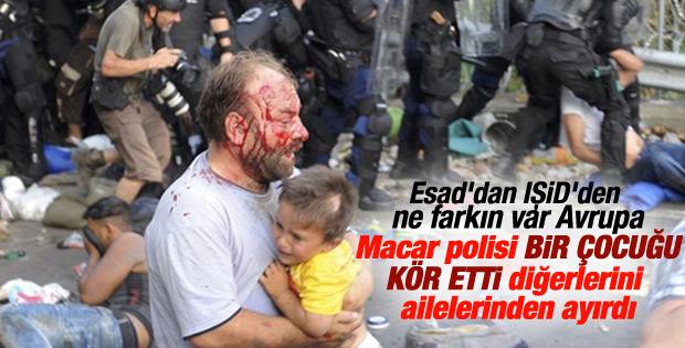 Macar polisi mülteci çocuğu kör etti