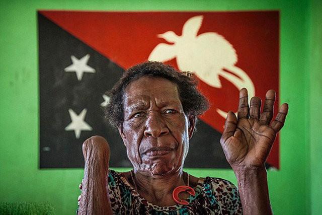 Pasifik'te cadı olarak suçlanan kadınlar cezalandırılıyor