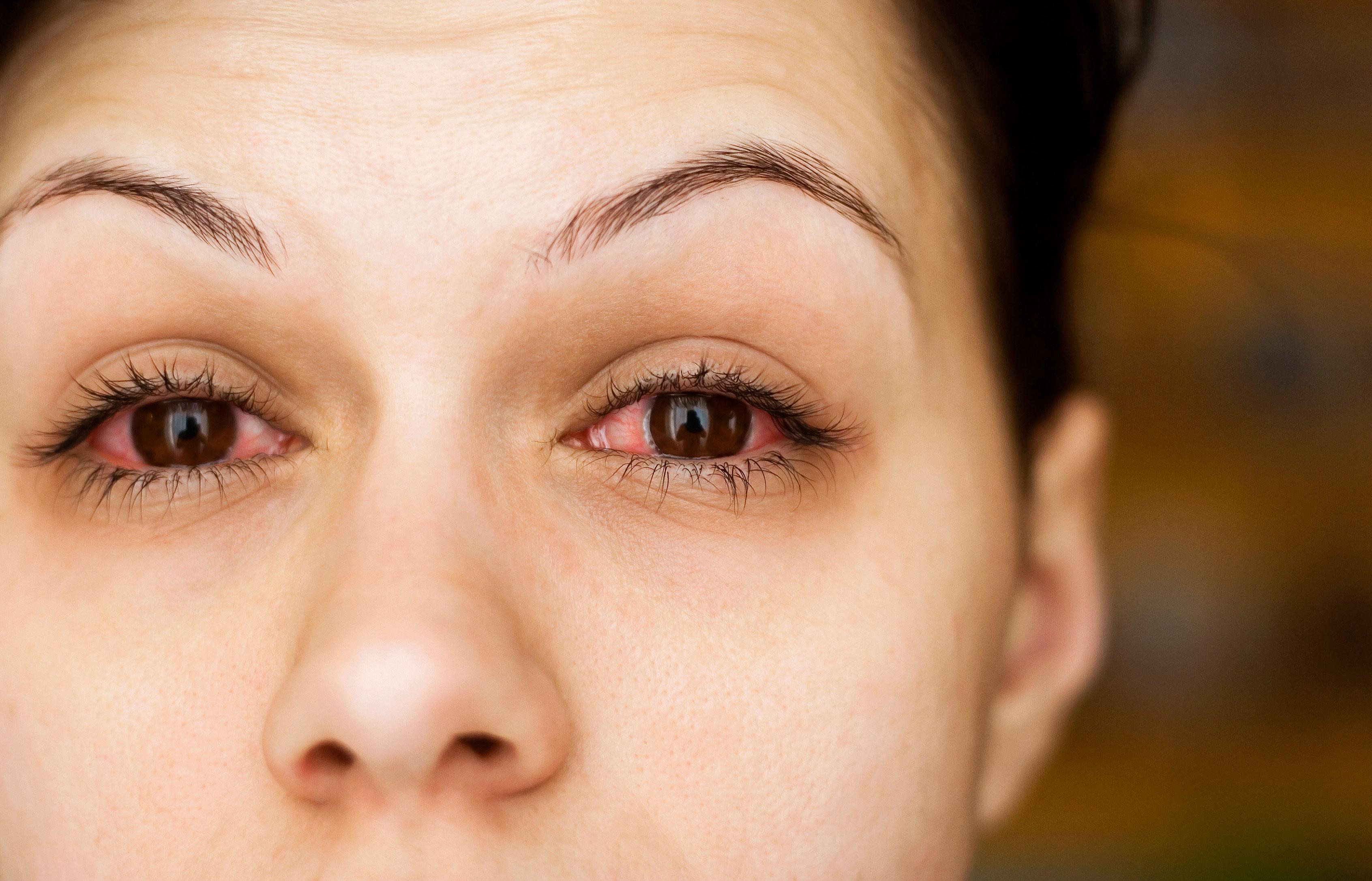 Şeker hastalığı olanlar göz kontrollerini aksatmasın #1