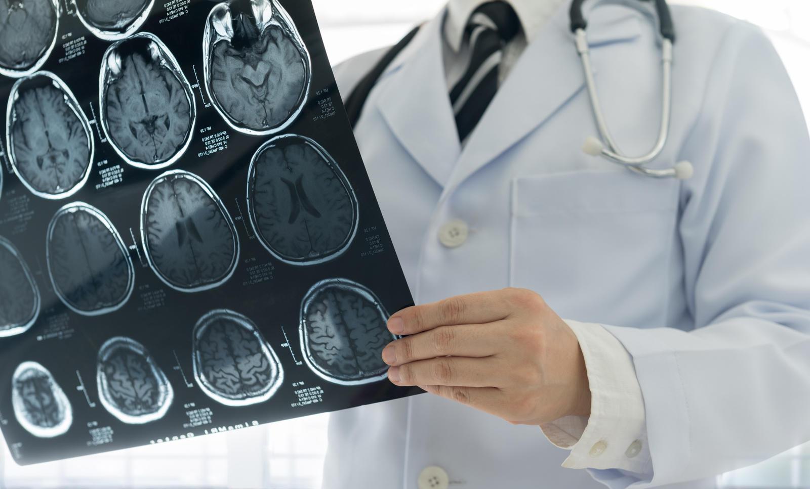 40 yaşından sonra anevrizma riski artıyor #2