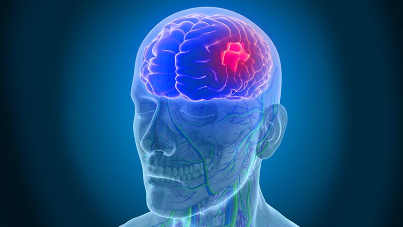 Yüksek tansiyon felç riskini artırıyor #1
