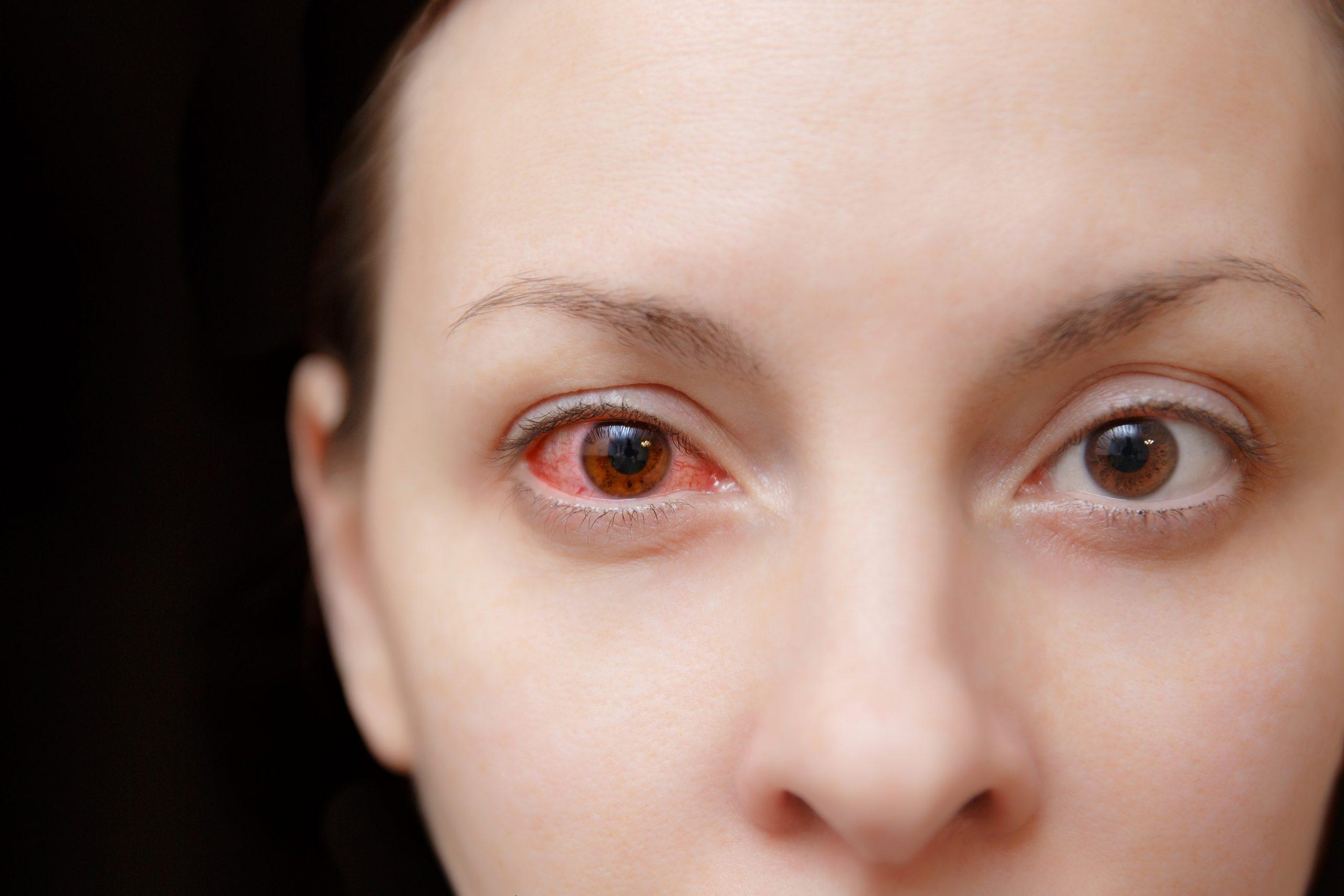 Retina yırtıkları görme kaybına neden olabiliyor #1