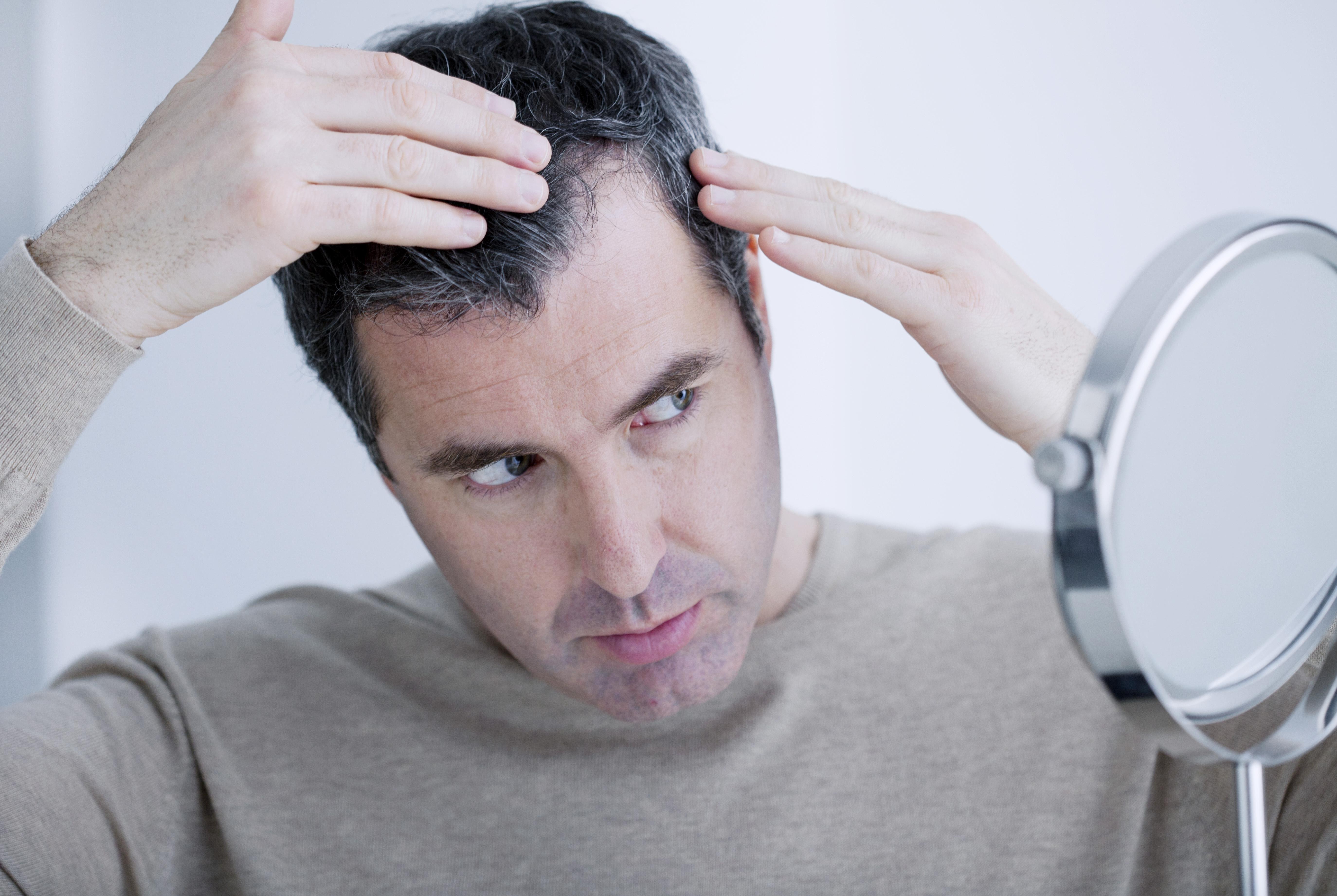 Saç dökülmesi kök hücre yöntemiyle önlenebiliyor #3
