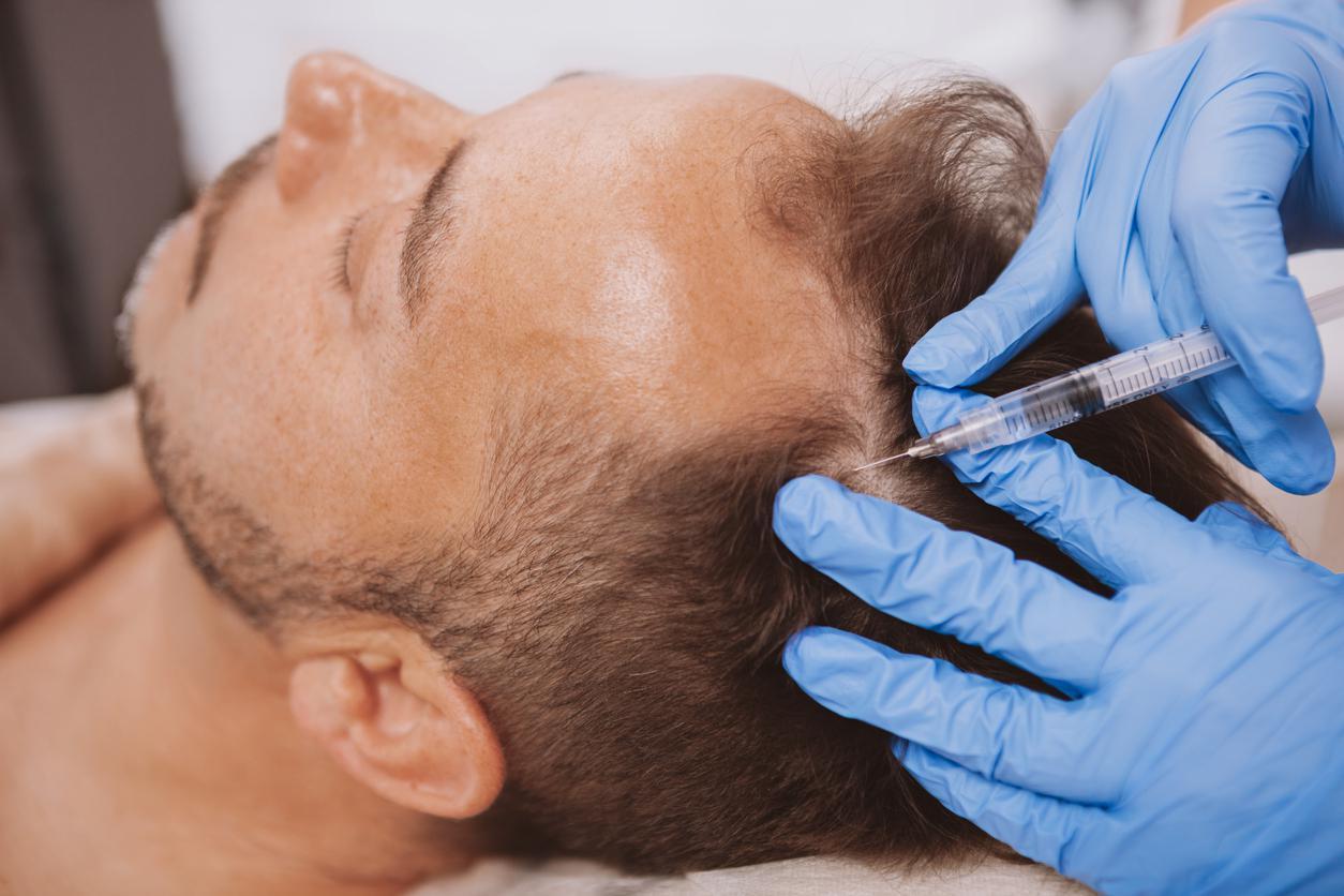 Saç dökülmesi kök hücre yöntemiyle önlenebiliyor #2