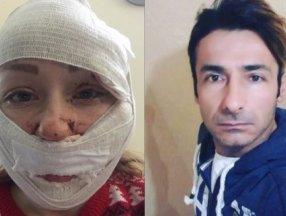 Bakırköy'de boşanmak istediği eşi tarafından falçatalı saldırıya uğrayan kadın konuştu