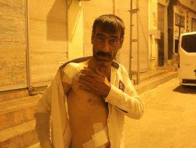 Gaziantep'te damda çay içtiği sırada vücuduna saçma isabet etti